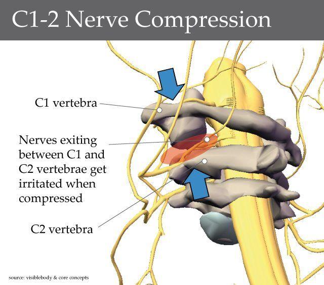 Imaging Of Upper Cervical Spine Injuries Part Iii C2 Below ...
