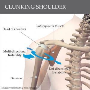 Clicking shoulder
