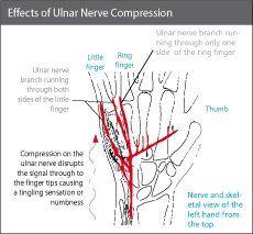 Ulnar nerve compression