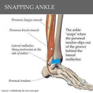 snapping ankle