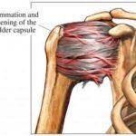 frozen shoulder or adhesive capsulitis
