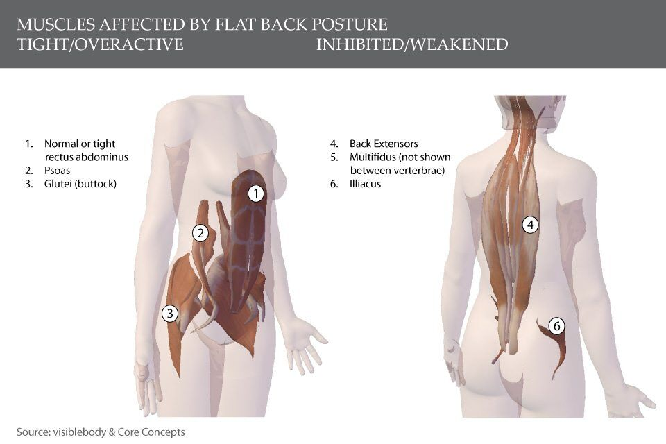 Which posture type are you? | Singapore Physiotherapy