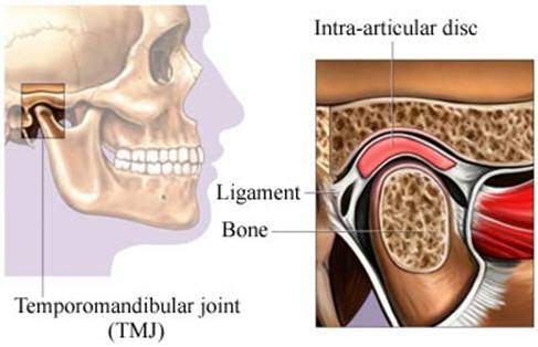how to relieve tinnitus caused by tmj
