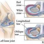 Knee Cartilage Tears