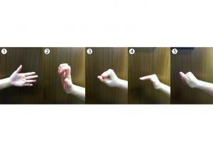 Figure 1 - Tendon Gliding Exercise: 1.Straight Hand 2.Claw Fist (hook) 3.Full Fist 4.Table Top 5.Straight Fist