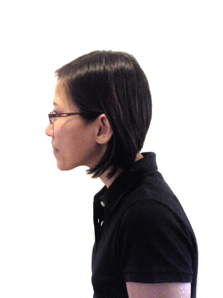 Figure 1: Forward Head Posture