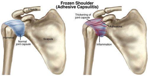 Frozen-shoulder