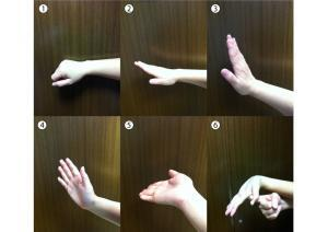 Figure 2 - Median Nerve Mobilisation: 1.Wrist neutral with fingers and thumb flexed. 2. Wrist neutral with fingers and thumb extended 3. Wrist and fingers extended, thumb neutral 4. Wrist, fingers, and thumb extended 5.Wrist, fingers, thumb extended and forearm supinated 6.Wrist, fingers, thumb extended, forearm supinated and thumb stretched into extension.