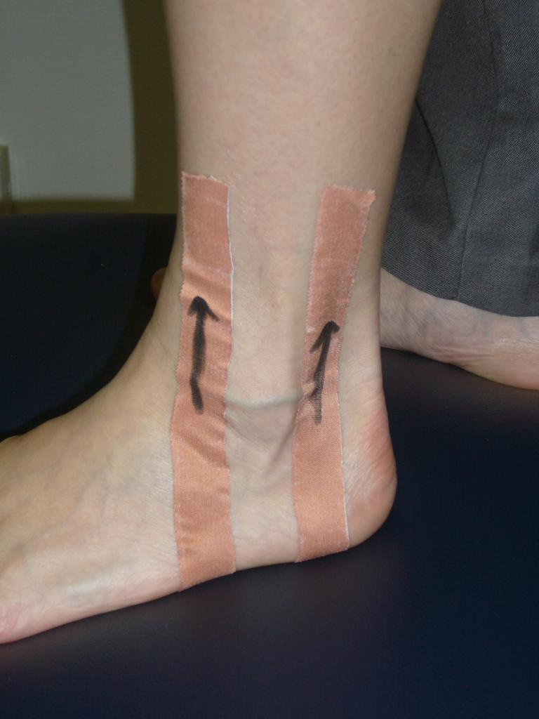 Taping for Swelling Management of Ankle Sprain