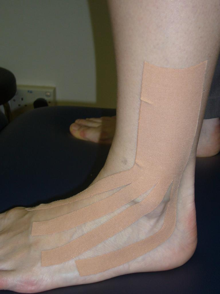 Proprioceptive Taping for Ankle Sprain