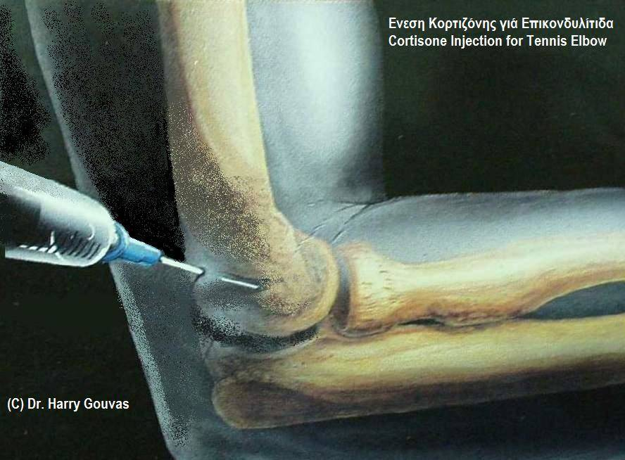 Corticosetriod Injection for tennis elbow