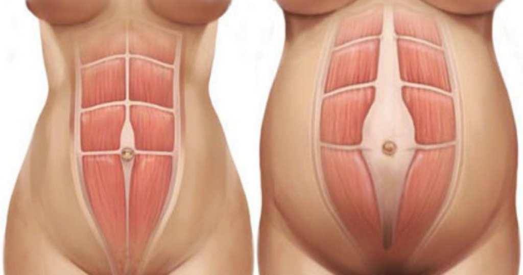 physiotherapy diastasis recti