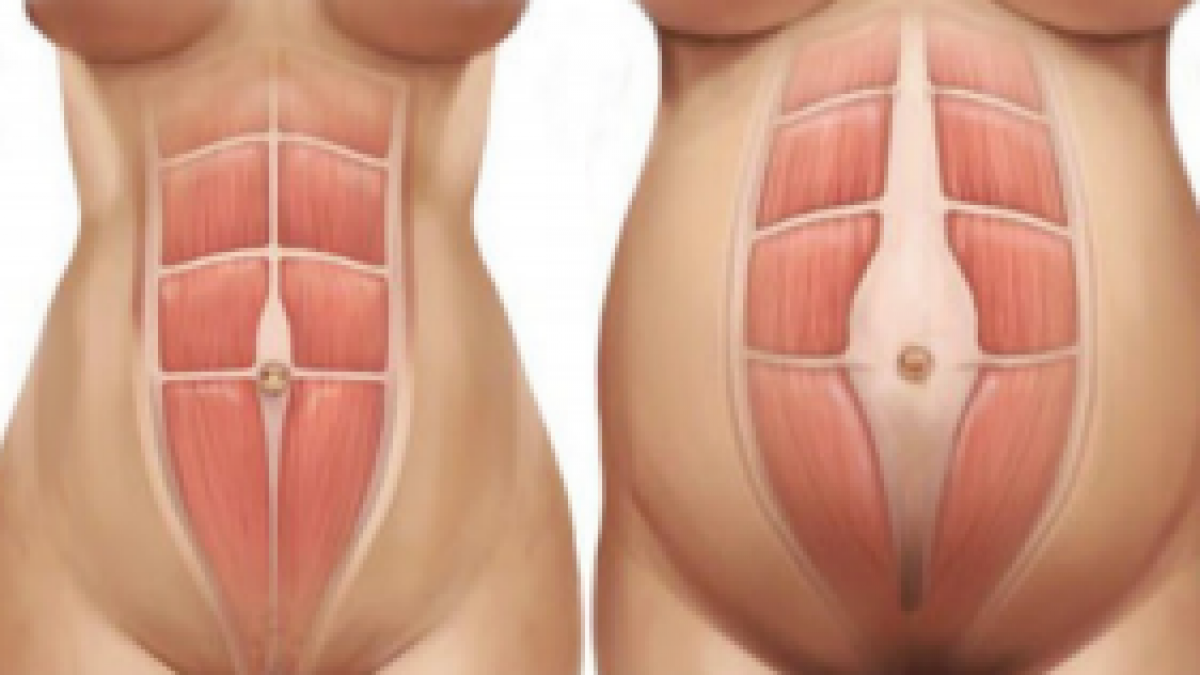 24+ Vertical stomach bulge when doing sit ups trends