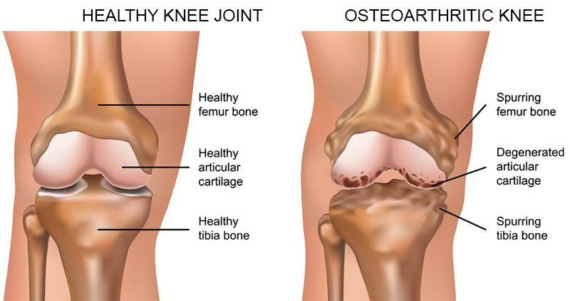 Comparison between a healthy knee, and osteoarthritic knee
