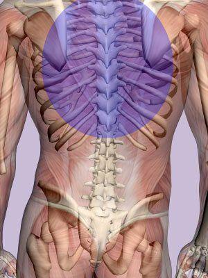 Misalgined rib cage and back pain