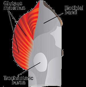 trochantericbursitis2